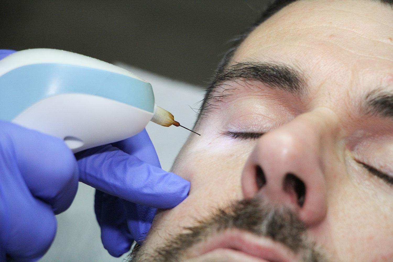 medicina-estetica-facial